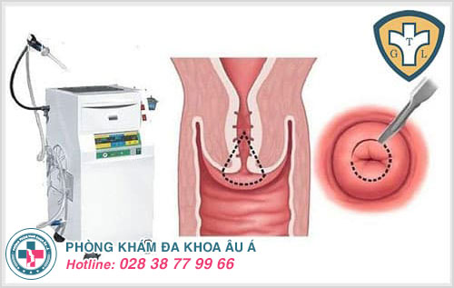 Hỗ trợ điều trị bệnh viêm cổ tử cung hiệu quả bằng phương pháp hiện đại