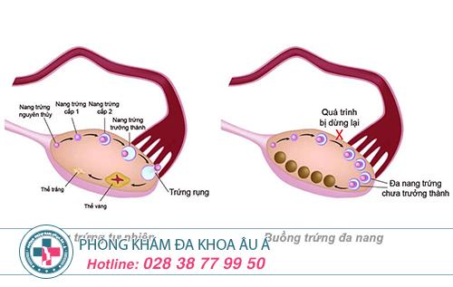 Bệnh buồng trứng đa nang và mức độ nguy hại