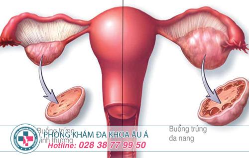 Biểu hiện của bệnh buồng trứng đa nang