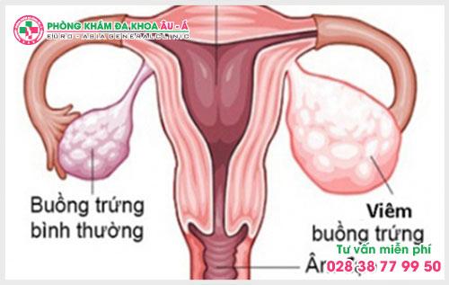 Biểu hiện và triệu chứng của viêm buồng trứng