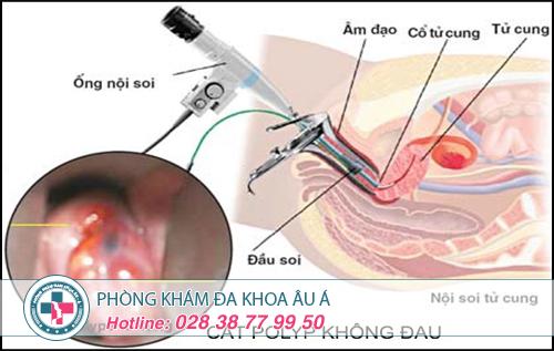 Chi phí cắt polyp cổ tử cung hết bao nhiêu tiền?