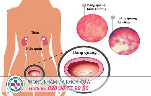 Viêm bàng quang ở nữ giới: Nguyên nhân, dấu hiệu và cách điều trị