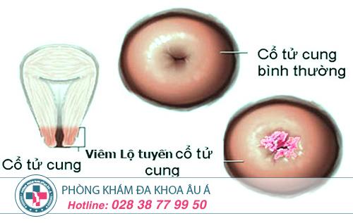 Điều trị viêm lộ tuyến cổ tử cung như thế nào?