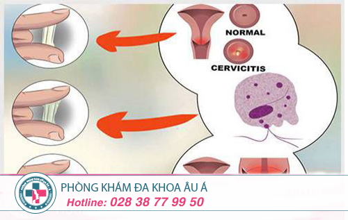 Làm thế nào chữa trị viêm lộ tuyến cổ tử cung?