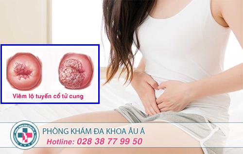 Những dấu hiệu viêm lộ tuyến cổ tử cung mà nữ giới nên biết
