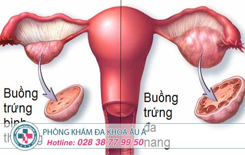 Phòng tránh bệnh đa nang buồng trứng hiệu quả