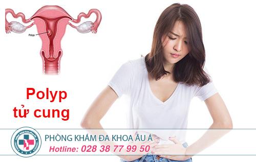Polyp cổ tử cung cách điều trị ra sao?