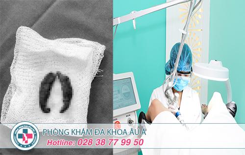Phẫu thuật thẩm mỹ âm đạo có lâu không?
