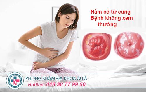 Triệu chứng và cách chữa nấm cổ tử cung hiệu quả
