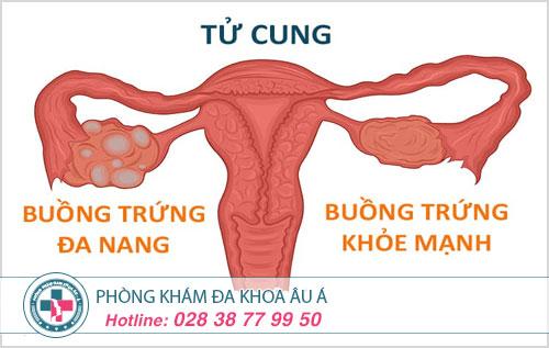 U nang buồng trứng là gì? Biểu hiện và cách điều trị