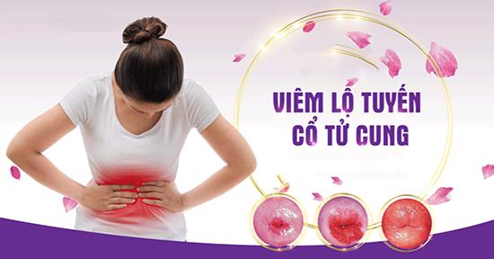 Thông tin cần biết về viêm lộ tuyến cổ tử cung