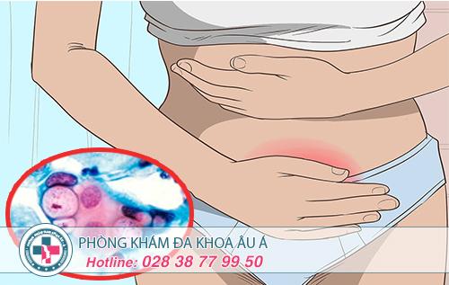 Viêm niệu đạo do vi khuẩn Chlamydia